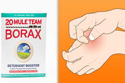 natural treatment for borax insecticide