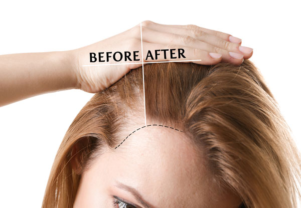 how to stop hair loss and regrow hair naturally